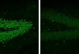 Green light: Injecting a drug into the brain (right) lowers the expression of MeCP2 protein (green) in mice with an extra copy of the gene.
