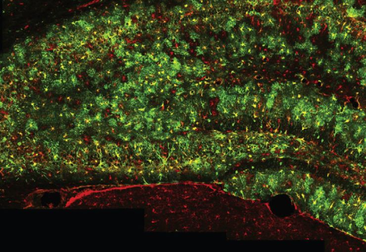 Green galaxy: Star-shaped cells called astrocytes glow in the brains of a new strain of mice.