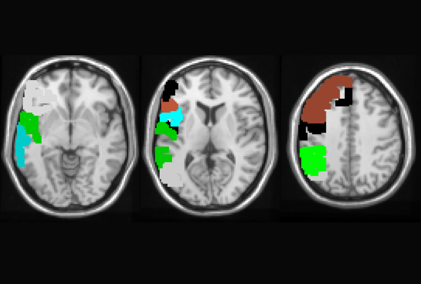 Autism Shares Brain Signature With >> Some Autism Genes May Act As Control Knobs For Brain Activity