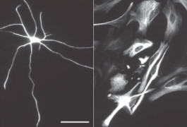Shape shift: Astroctyes grown using a new method form delicate star shapes (left), whereas astrocytes grown in serum from blood turn flat and blobby (right).