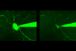 Before and after: In a new method, researchers record electrical signals from an intact neuron (left) and then remove its contents (right) for analysis.Shan Shen