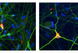 Short circuit: Depriving immune cells called T cells of oxygen and nutrients coaxes them into becoming different types (left and far left) of electrically active, mature neurons.