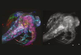 Shrimp snapshot: A computer algorithm paired with light-splitting technology can simultaneously scan seven layers of tissue in a brine shrimp (right) — a feat traditionally achieved by merging scans from each layer (left). Weijian Yang, Columbia University