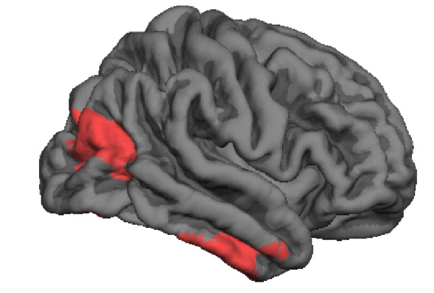 In Autism Brain Shows Unusual Thinning >> Study Unfolds Brain Structure Changes In Children With Autism