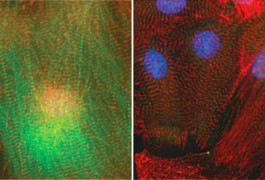 Double-take: A new molecular tool silences the gene for a heart muscle protein (green) in cultured cells.