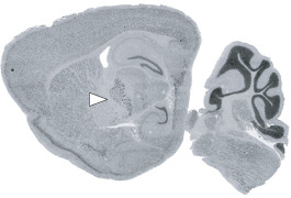 Protein problems: Mice missing a key protein in the thalamus (arrow) are hyperactive and inattentive.