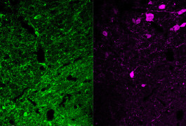 Double trouble: A new imaging system allows researchers to read the activity of two different neuron types (green and purple) in the same brain region in mice.