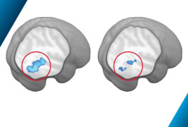 Social activity: The brains of typical boys (left), but not boys with autism (right), show a boost in activity (blue) in the social brain when they see socially relevant information.