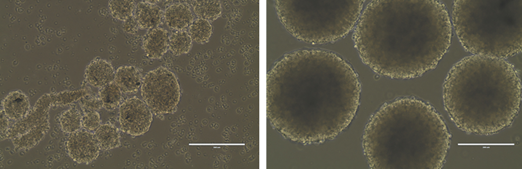 Cell death: Clusters of brain cells grown in culture that have been infected with the Zika virus (left) are much smaller than uninfected spheres (right).