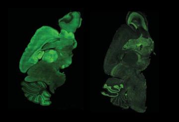 Tremor trigger: Deleting MeCP2 (green) from a subset of neurons in the mouse brain (right) leads to tremors and anxiety.