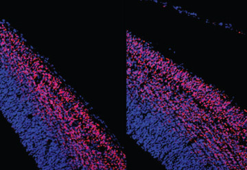 Surfeit of cells:  The brains of mice missing genes involved in the WNT pathway (right) have more neurons (pink) than controls do (left). Haim Belinson / UCSF