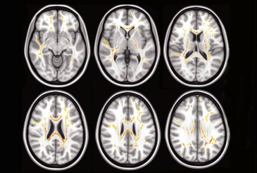 Plus l'enfant a des difficultés d'exécution dans les tâches quotidiennes , plus la structure des fibres nerveuses dans certaines régions du cerveau est atypique (rouge , jaune)