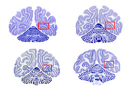 Fast forward:  Gene expression patterns in the monkey visual cortex (red box) are similar to those in people during infancy (top brains), childhood (bottom left) and adulthood (bottom right).