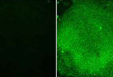Sample cells: Researchers can test potential drugs for fragile X syndrome using stem cells from people with the condition (left) that lack the fragile X protein (green).