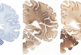 Stained slices of a human brain