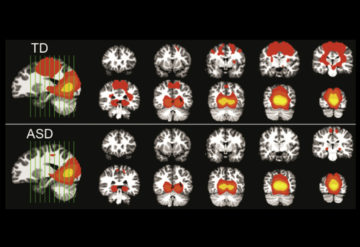 Sight sense: A visual brain region may be less synchronized with other brain regions in children with autism (bottom) than in typical children (top).