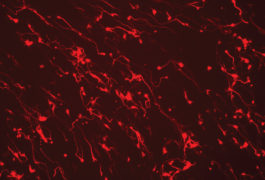 Using CRISPR to switch on specific genes makes mouse skin cells morph into neurons.