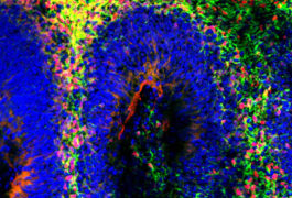 Lab spheres: Organoids contain different types of cells arranged in layers similar to those found in the human brain.