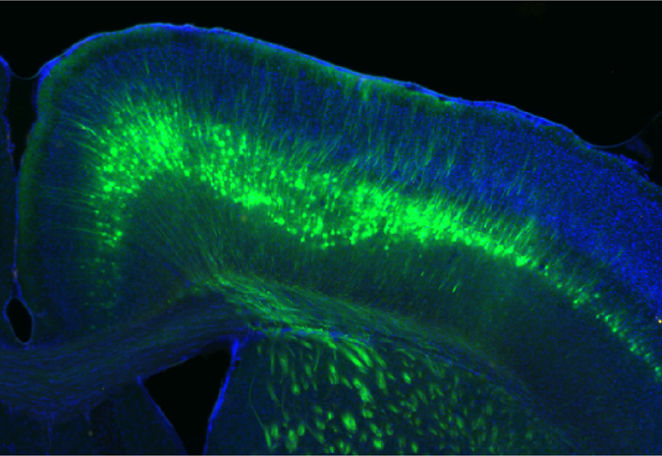 Cells selected:  In this cross-section of a mouse brain, nerve fibers infected with a virus glow green.