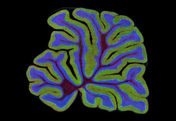 Brain boost: Treatments for Rett syndrome could grow a brain region that coordinates movement.Credit: Science Source