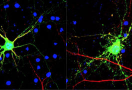 Branching out:  Compared with control neurons (left), those from mice missing a copy of the gene GCN2 (right) have more branches — a sign of immaturity.