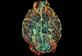 Select cells: A new method targets genetic constructs to unique circuits within the brain's vast network.Simon Walker-Samuel / SCIENCE PHOTO LIBRARY