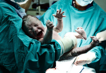 Air supply: Some newborns exposed to their own feces in the womb require oxygen and intravenous fluids. Reynardt / iStock