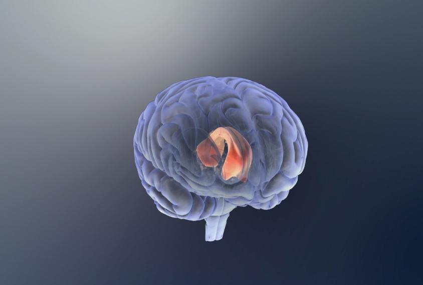 human brain showing the corpus callosum highlighted