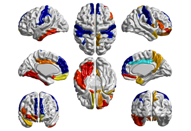 Blue zones: Surface area measurements (blue) in certain areas of the brains of 6-month-old babies can distinguish children with autism from those without the condition.