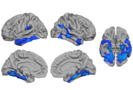 Deep brains: The thickness of a number of brain areas distinguishes women with autism from those without the condition.