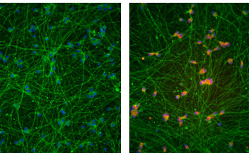 Deleting DNA repeats from fragile X neurons restores expression (right, red) of the gene silenced in the syndrome.