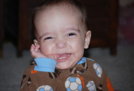 Telltale teeth: Tony, who has an ADNP mutation, had 16 teeth when he was 13 months old. Courtesty of Sandra Sermone