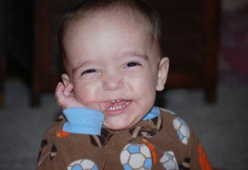 Telltale teeth: Tony, who has an ADNP mutation, had 16 teeth when he was 13 months old. Courtesty of Sandra Sermone