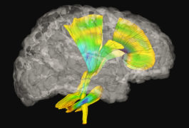 Checking connections: Bundles of neurons called white-matter tracts bridge far-flung, and nearby, regions of the brain.