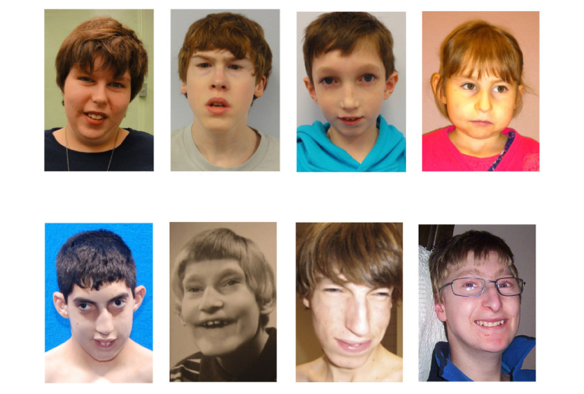 Grid of 8 portraits of children with characteristic facial features