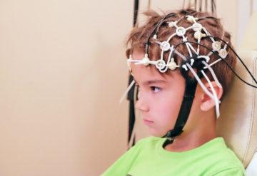 child with brain scan test