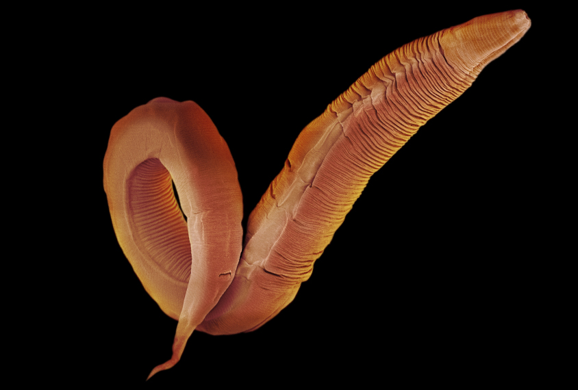 Wriggling Worms Yield Clues To Correcting Autism Mutations