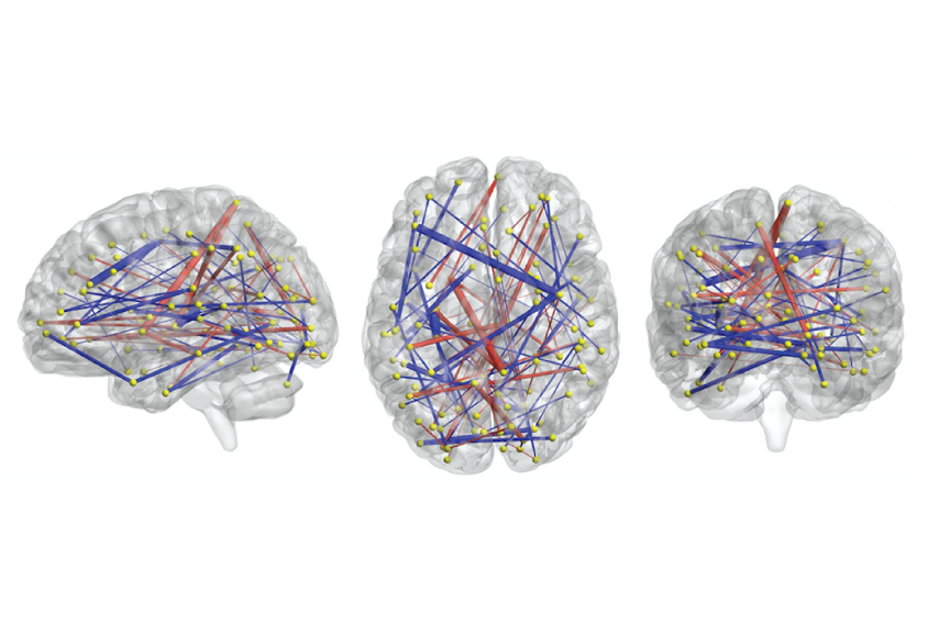 Brain Scans May Forecast Autism In High >> Brain Scans May Forecast Autism In High Risk Infants Spectrum