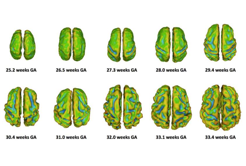Brain Imaging Studies Seek Signs Of >> Brain Imaging Studies Seek Signs Of Autism Before Birth
