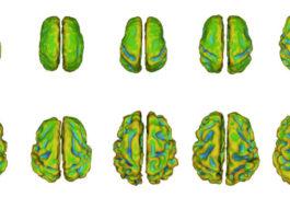 Scans of fetal brains.