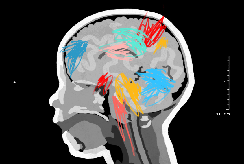 Illustration shows a cross section of a child's head with colorful scribbles on the brain.