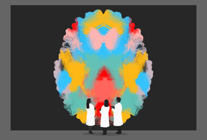Illustration shows doctors standing in front of a top-down view of a brain, rendered in colorful scribbles.