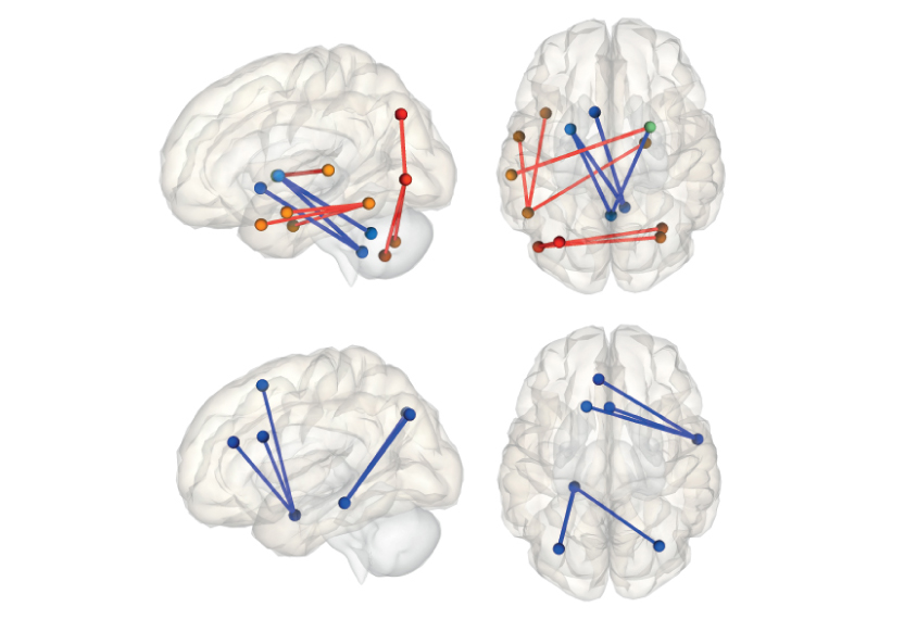 Relative to controls, children with autism taking certain drugs have greater functional connectivity between brain regions (top, red), whereas unmedicated children with autism show less connectivity (bottom, blue).