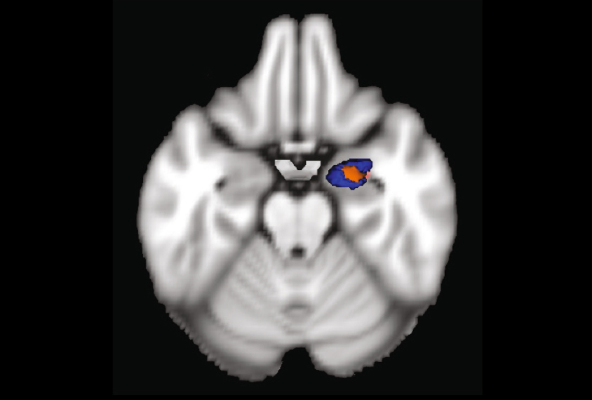 A brain scan showing an abnormally small amygdala
