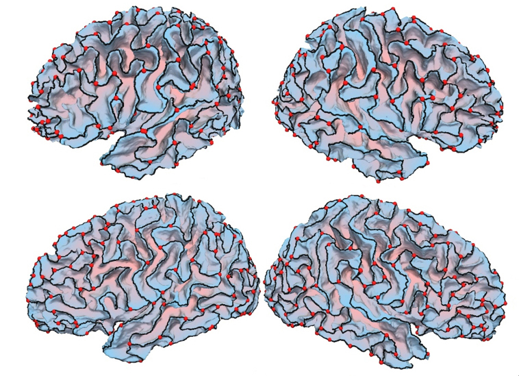 Image of brains showing The crests of the brain's outer shell are more curved in people with autism (top) than in controls (bottom)