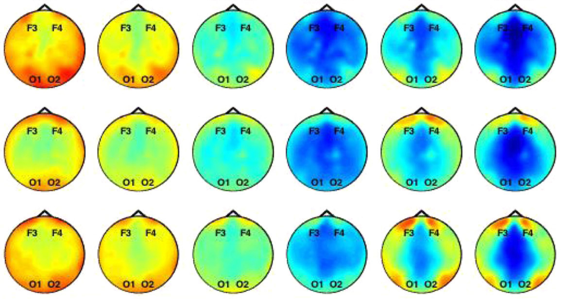 Baby sibs (top and middle rows) have weaker patterns of brain activity (blue) at the front of the brain than do controls (bottom row).