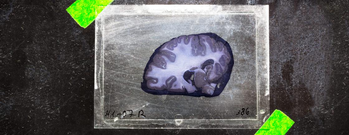 Brain bank slice of brain in lab