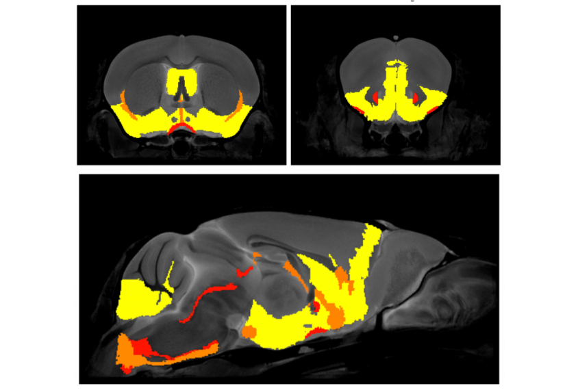 Brain regions (yellow) altered by missing immune genes correlate with those involved in anxiety.