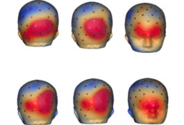 six scans of brains showing various active regions highlighted