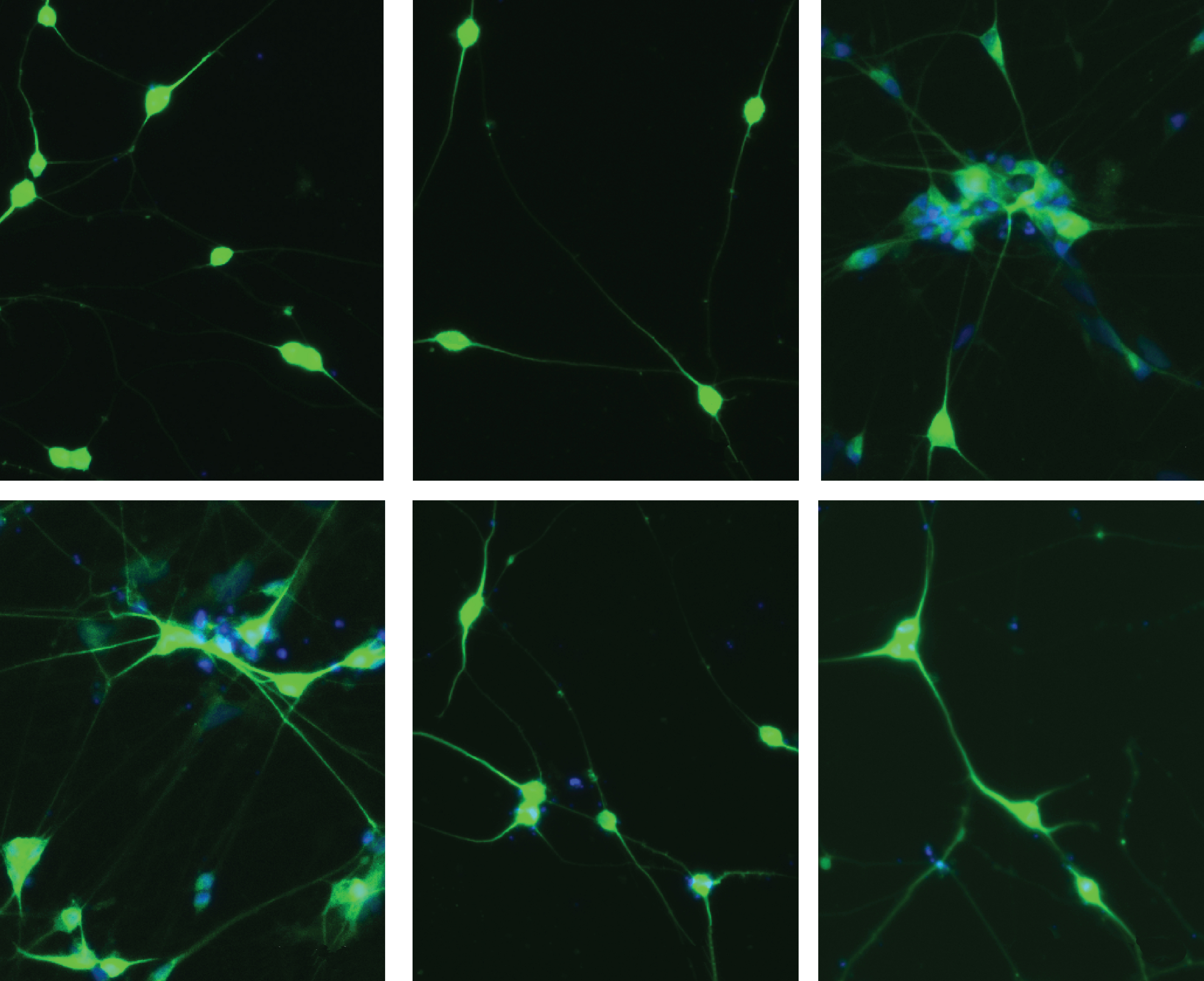 Neurons (green) generated from a human stem-cell line carry one of six mutations associated with schizophrenia, autism or intellectual disability.